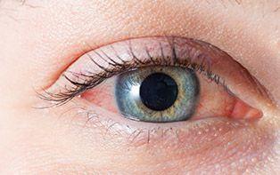Conseils de votre pharmacien en ligne pour soigner les yeux rouges